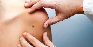Approda ad Augusta  la prima campagna di prevenzione e screening  per combattere i tumori della pelle non melanoma.  La Marina Militare a supporto della prevenzione